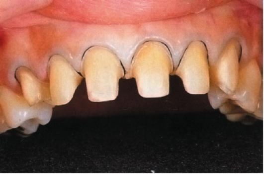 Препарирование зуба под керамическую коронку