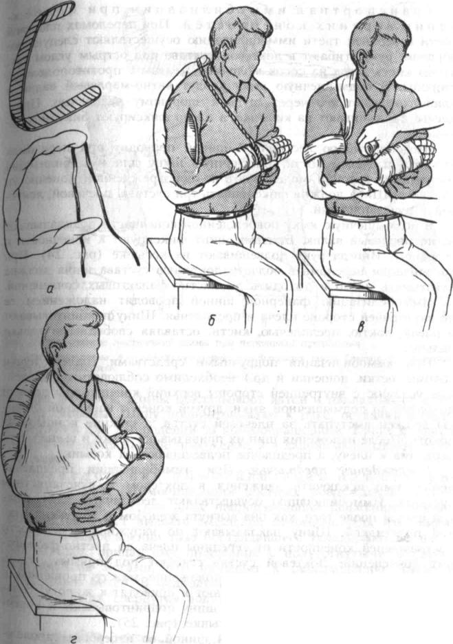 Имобилизация плечевого сустава воспаление суставов в колене