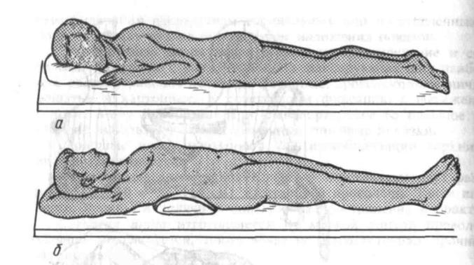 Иммобилизация при повреждениях позвоночника
