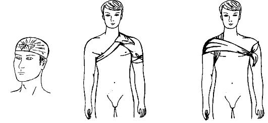 Косыночная повязка на плечевой сустав гимнастика бубновского суставная видео онлайнi