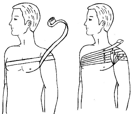 Наложение повязки на плечевой сустав алгоритм замена плечевого сустава в москве