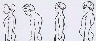 Осанка: виды осанки и этапы развития нарушений осанки