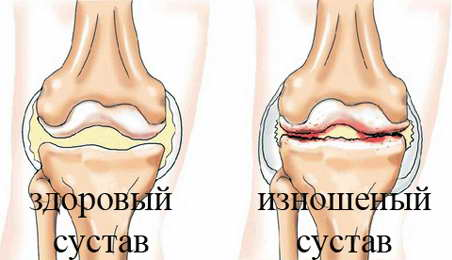форум кто перенес операцию флегмона тазобедренного сустава