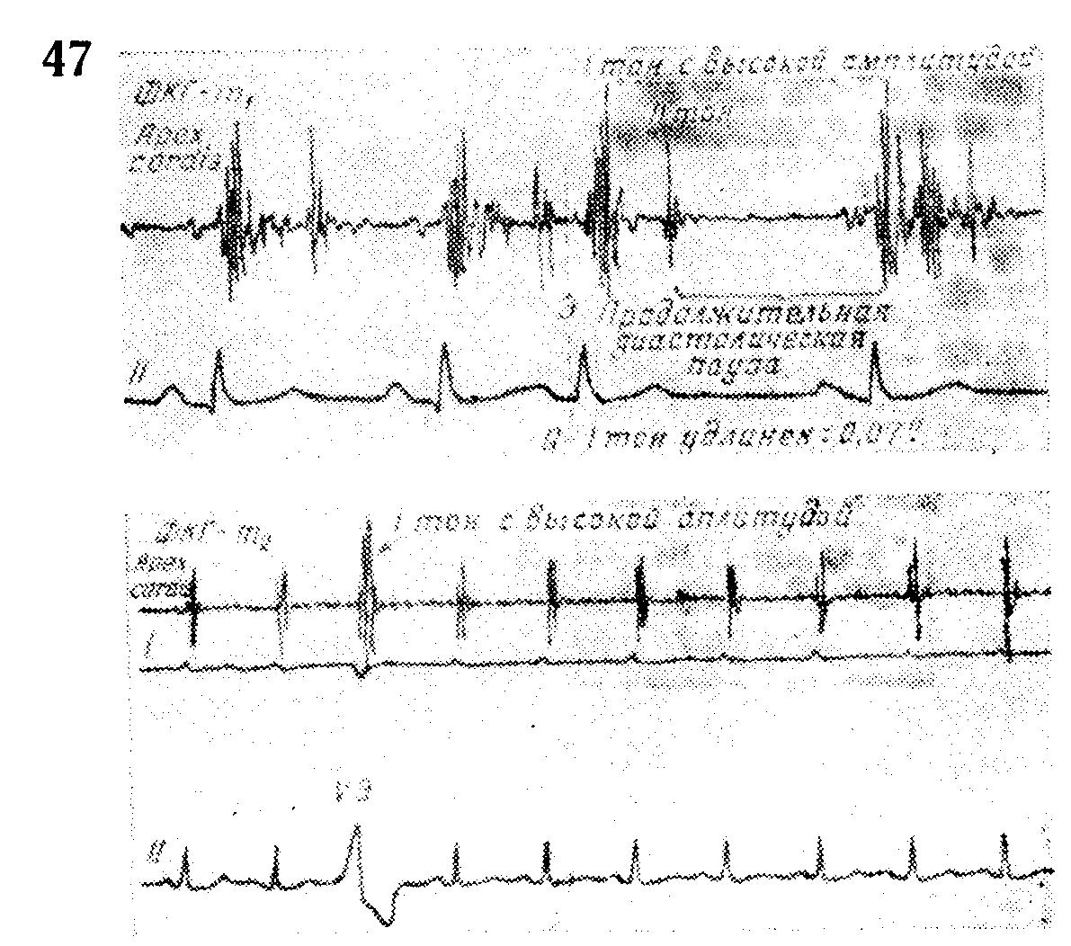 Экстрасистолы при нагрузке ⋆ Лечение Сердца