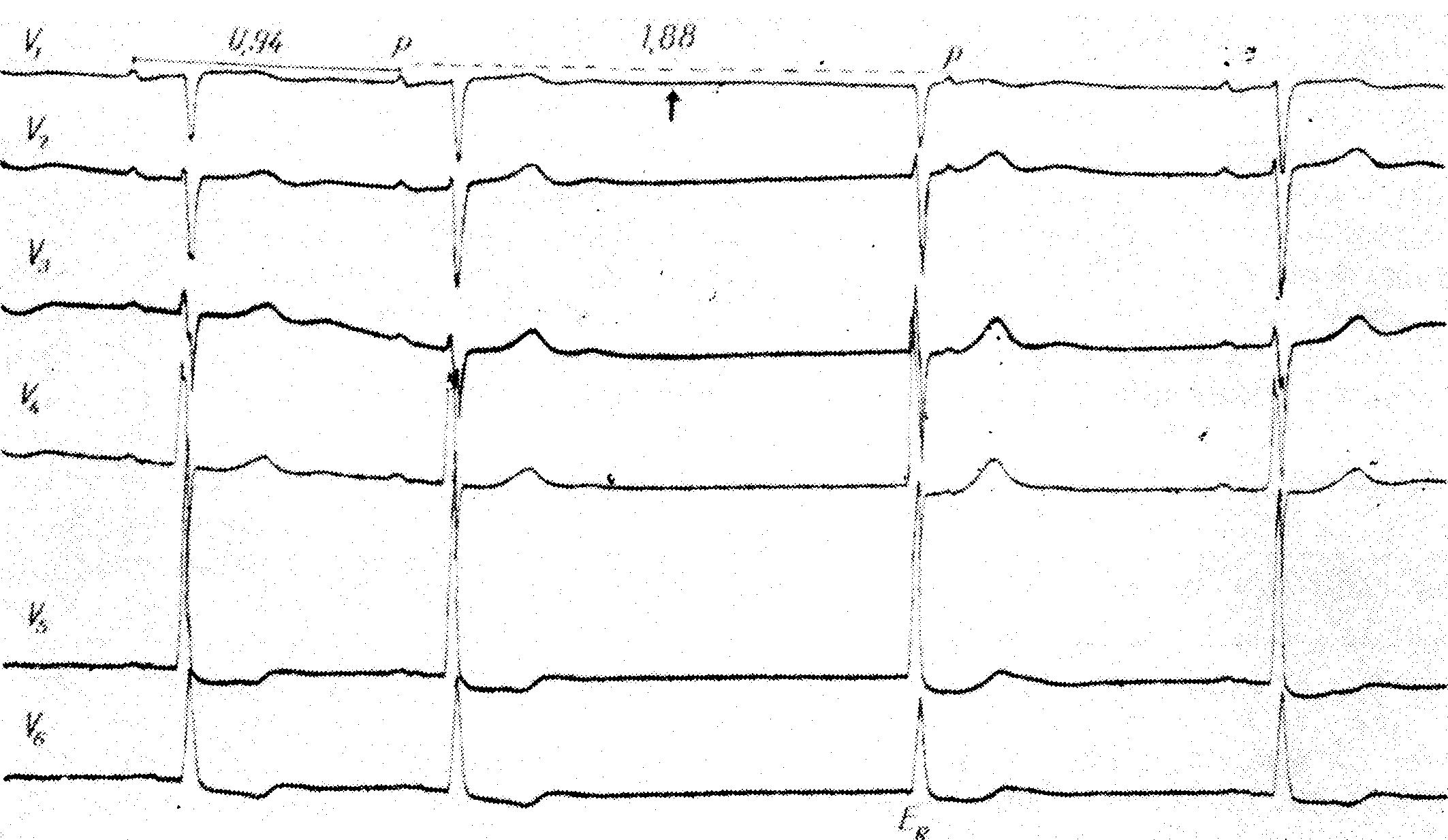 Электрокардиографические критерии синоаурикулярной блокады второй степени