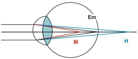 Что нельзя делать при астигматизме глаз