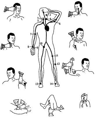 """Результат пошуку зображень за запитом """"Місця пальцевого притискування великих артерій на голові та шиї"""""""