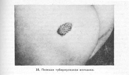 Туберкулез кожи (tuberculosis cutis)