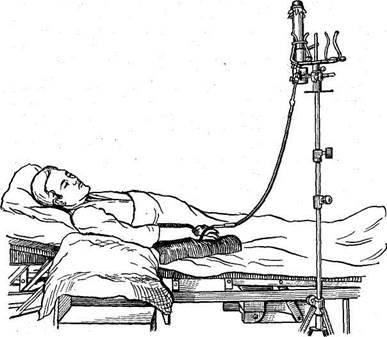 Варикозное расширение вен желудка лечение