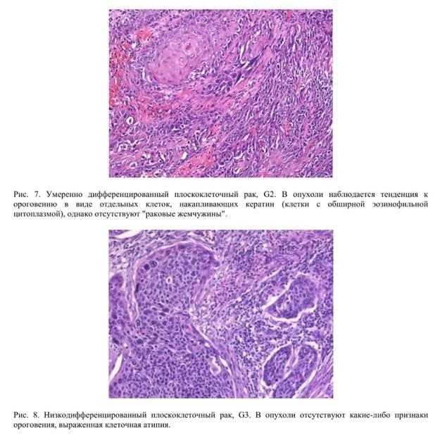 Умеренный дифференцированный плоскоклеточная карцинома возле анального отверстия