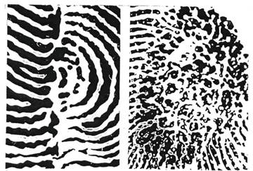 Строение кожного покрова ладонной поверхности рук и криминалистически значимые свойства его элементов